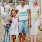 Blanco: Documental sobre Los Albinos en Dominicana